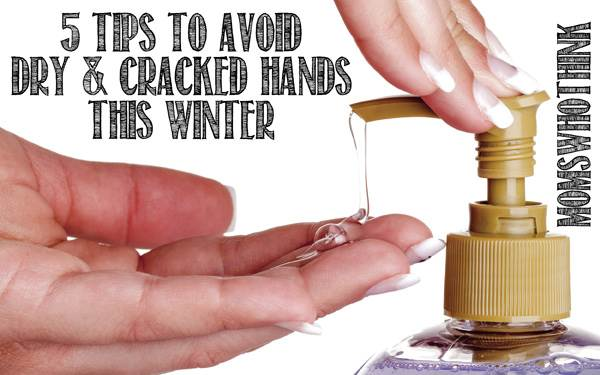 Chapped Hands Treatments